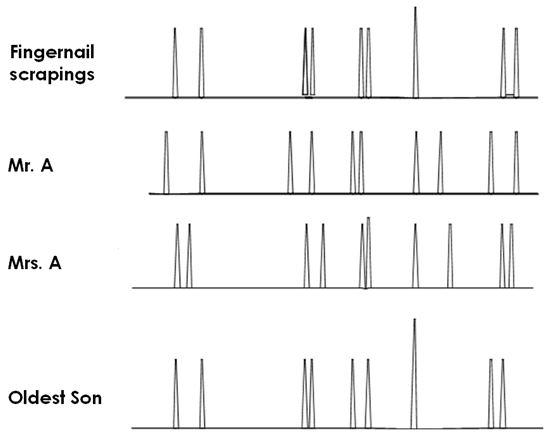 Рис.1. Результаты анализа ДНК проб из под ногтей жертвы и главных подозреваемых